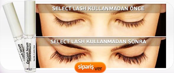 Select Lash şikayet – select lash kullanıcı yorumları